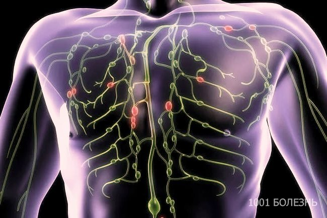 Лимфома ходжкина – что это за болезнь, как ее выявить и лечить?