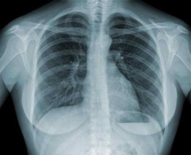 Федеральные клинические рекомендации по диагностике и лечению туберкулеза органов дыхания с множественной и широкой лекарственной устойчивостью возбудителя