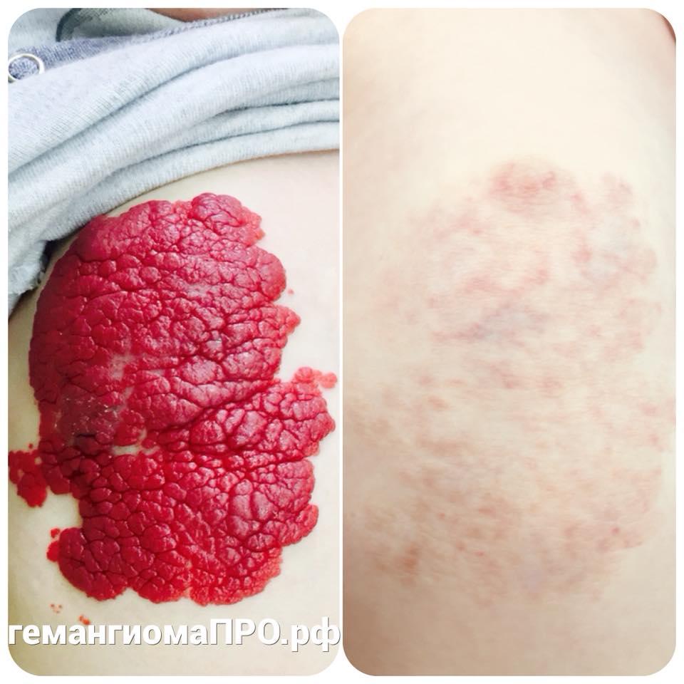 Гемангиома кожи, тела, печени, позвоночника, почки у новорождённых, детей и взрослых – причины, симптомы, осложнения, методы диагностики и лечения, фото
