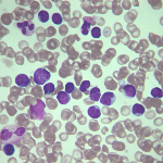 Что такое относительный и абсолютный лимфоцитоз и его причины