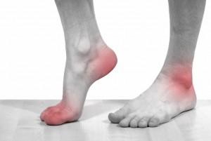 Артрит голеностопного сустава: причины, симптомы, эффективные методы традиционной и народной медицины