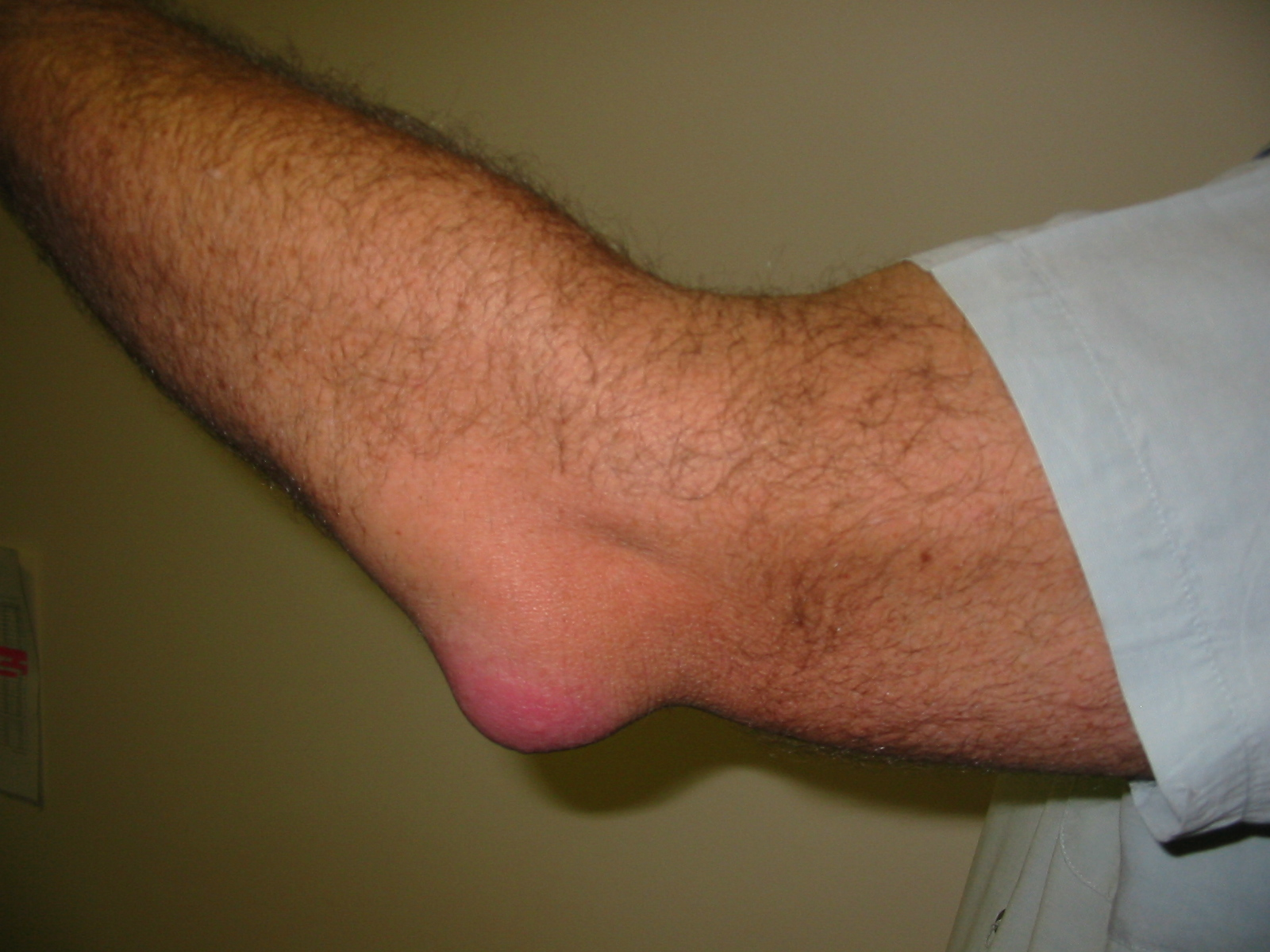 Ревматоидный артрит голеностопного сустава: причины, симптомы, диагностика и особенности лечения