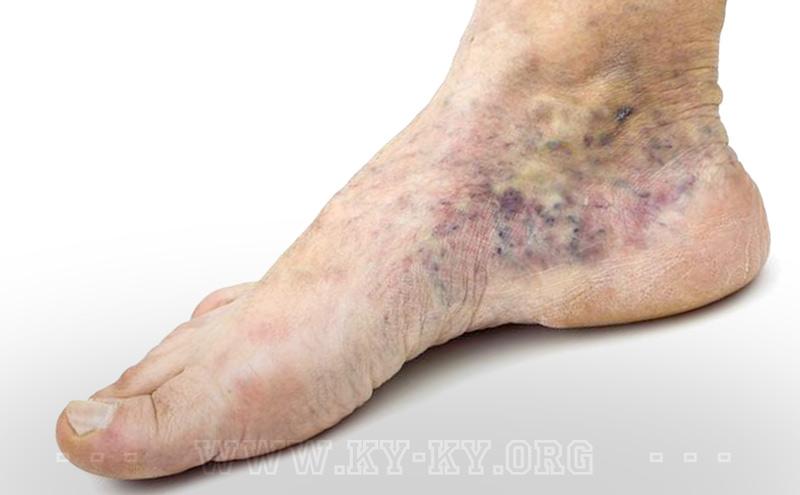 Тромбофлебит: симптомы и лечение