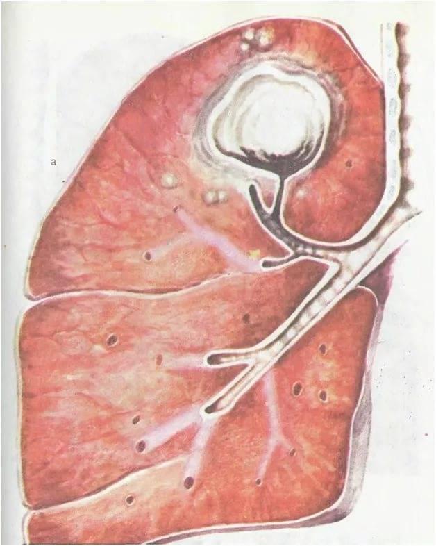 После удаления туберкулемы можно снова заболеть