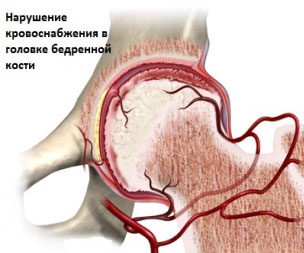 Остеохондропатия – классификация, причины, симптомы, диагностика, лечение