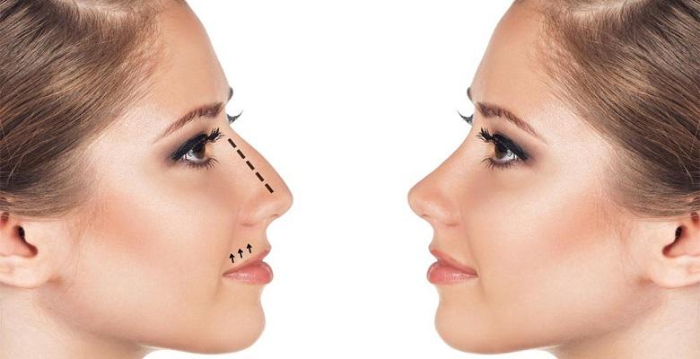 Ринопластика: нюансы операции и важные особенности пластики носа - новости партнеров - вести-кузбасс