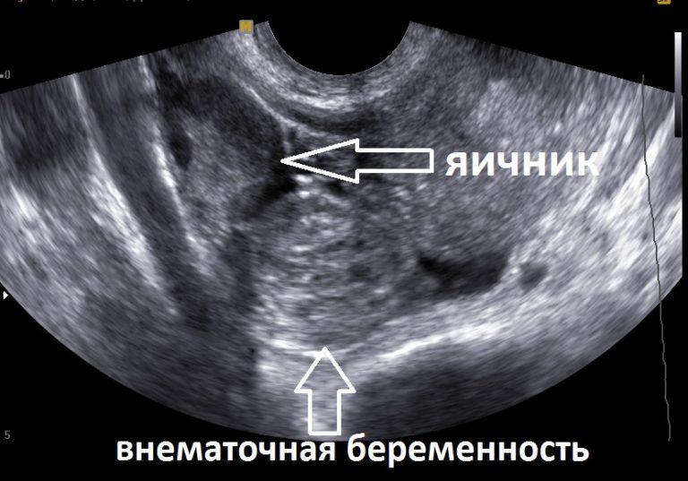 Внематочная беременность — признаки и лечение опасной патологии