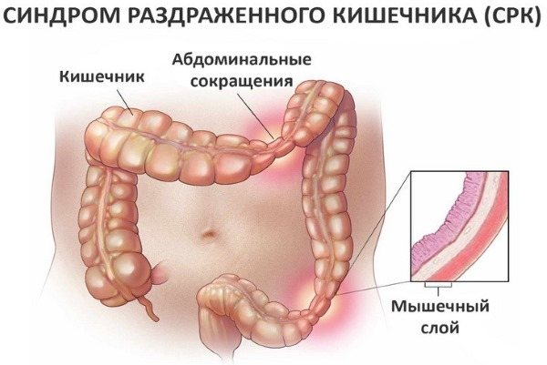 Как проявляется синдром раздраженного кишечника – симптомы и лечение