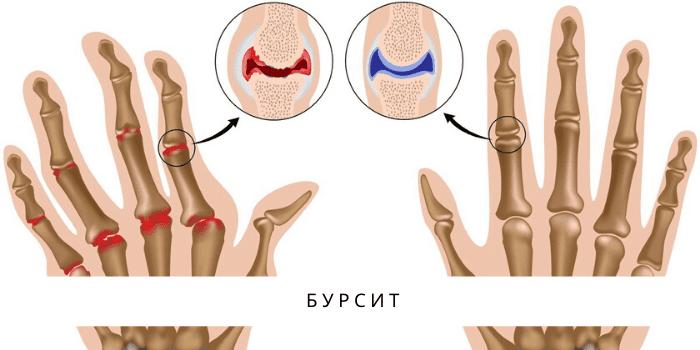 Методы лечения бурсита локтевого сустава