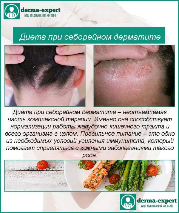 Лечение Псориаза Головы Диетой. Знай «врага» в лицо. Что нельзя есть при псориазе