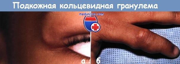 Кольцевидная гранулёма у ребёнка: лечить или забыть?