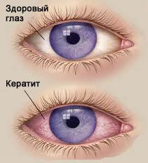 Кератопатия глаз: что это такое и как лечить