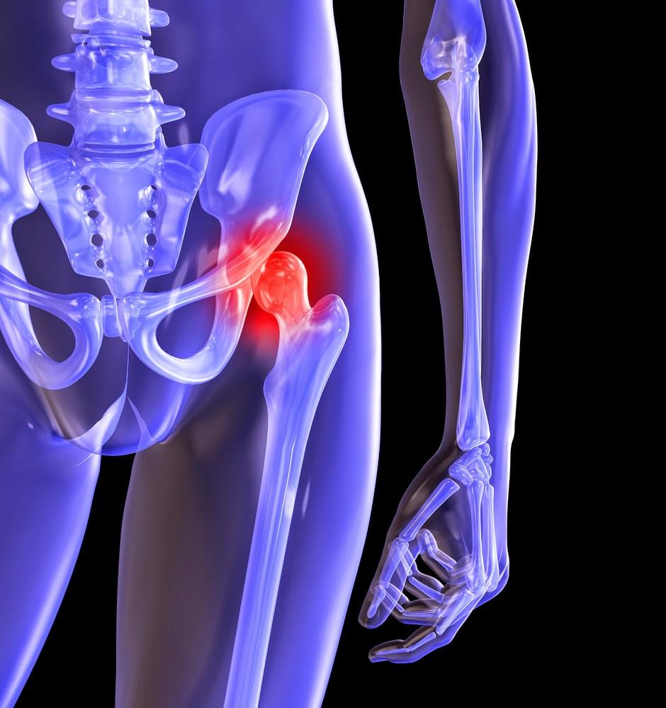 Питание при коксартрозе тазобедренного сустава 2 степени бубновский