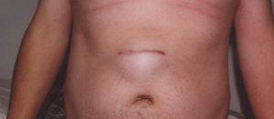 Симптомы пупочной грыжи у женщин и эффективное лечение