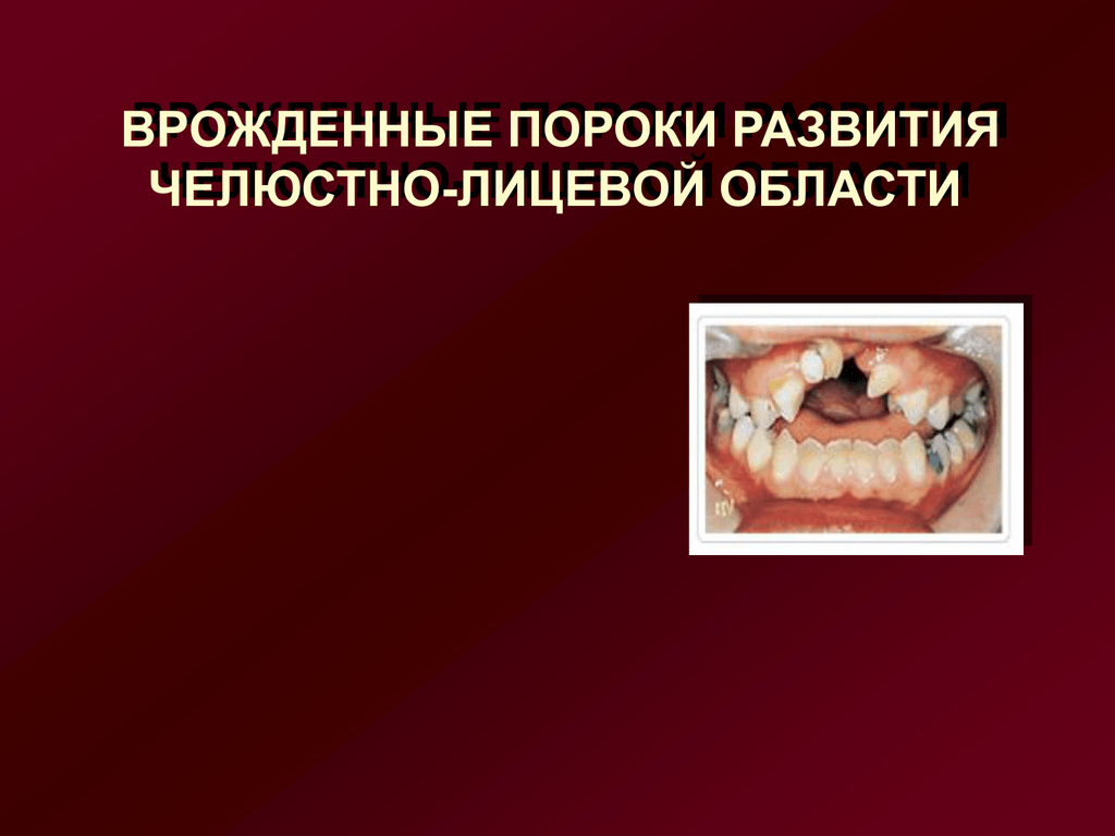 Заячья губа: причины возникновения
