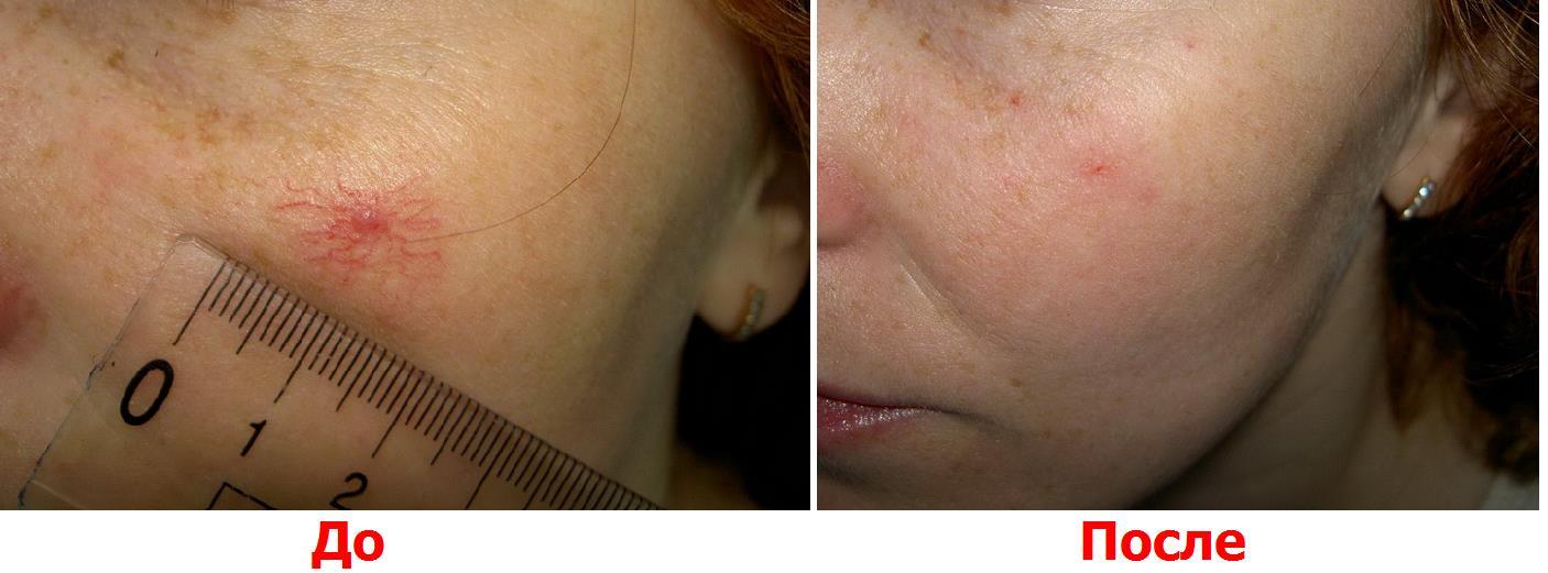 Способы удаления сосудистых звездочек на лице, ногах и других участках тела