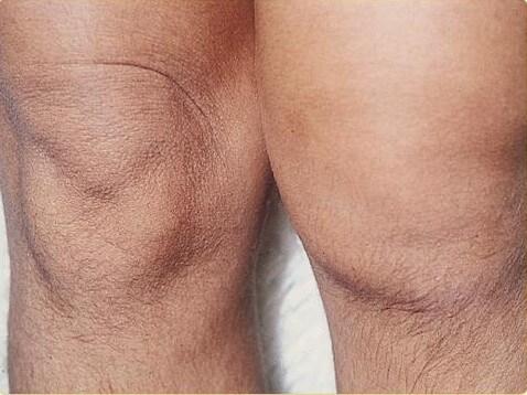 Растяжение связок коленного сустава: эффективное лечение