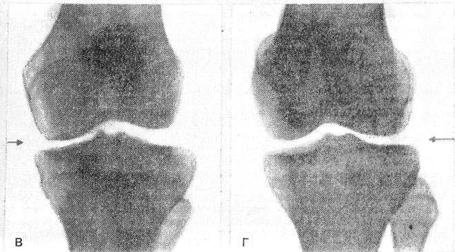 Пяточная шпора – симптомы и лечение в домашних условиях, фото