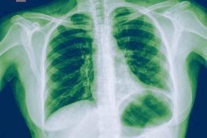 Основные признаки пневмонии у ребенка без температуры