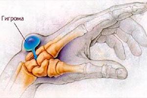 Гигрома (синовиальная киста, ганглий) запястья, кисти, руки, стопы, колена и др. – причины, виды и симптомы, диагностика и методы лечения (удаление), цена операции, отзывы, фото