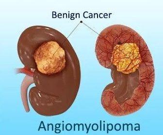 Ангиомиолипома почки: диагностика и лечение