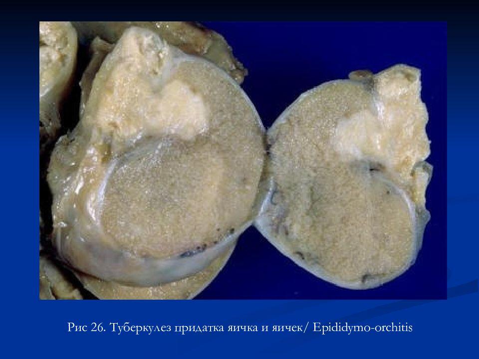 Туберкулез почек: симптомы, лечение и сестринский уход