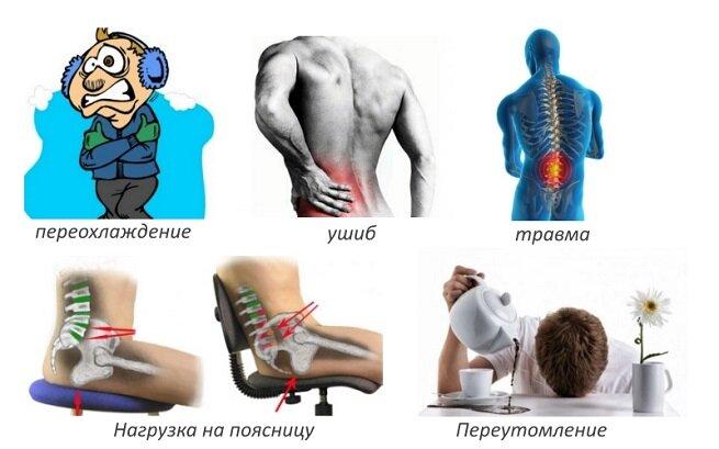 Люмбоишиалгия что | советы доктора