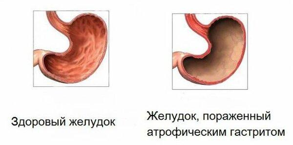 Острый гастрит — симптомы и лечение в домашних условиях