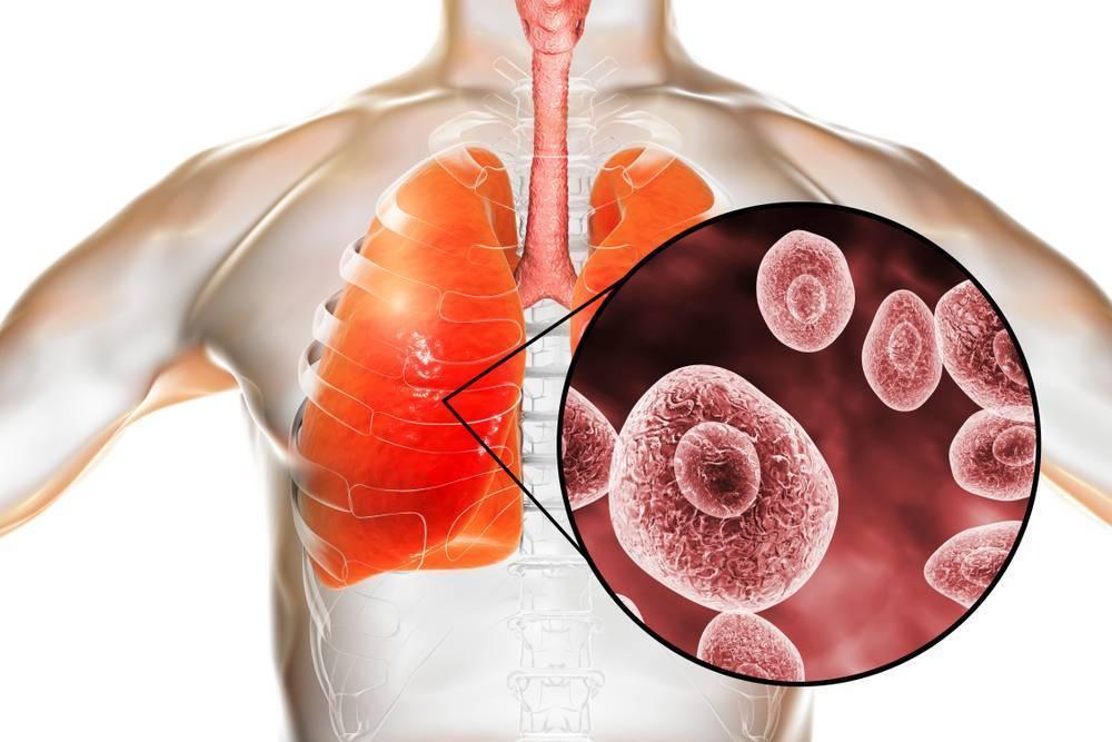 Грибковая пневмония: как происходит заражение, симптомы и причины