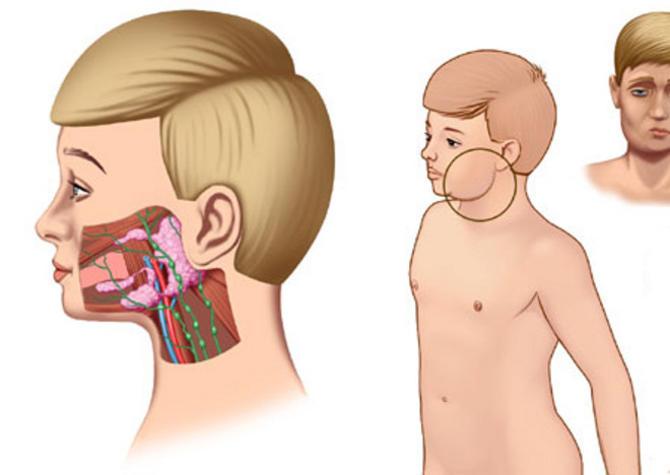 Симптомы и лечение свинки у детей. осложнения паротита