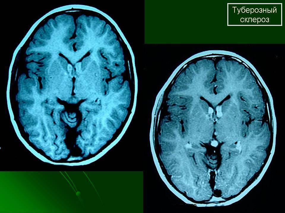 Туберозный склероз причины симптомы диагностика и лечение