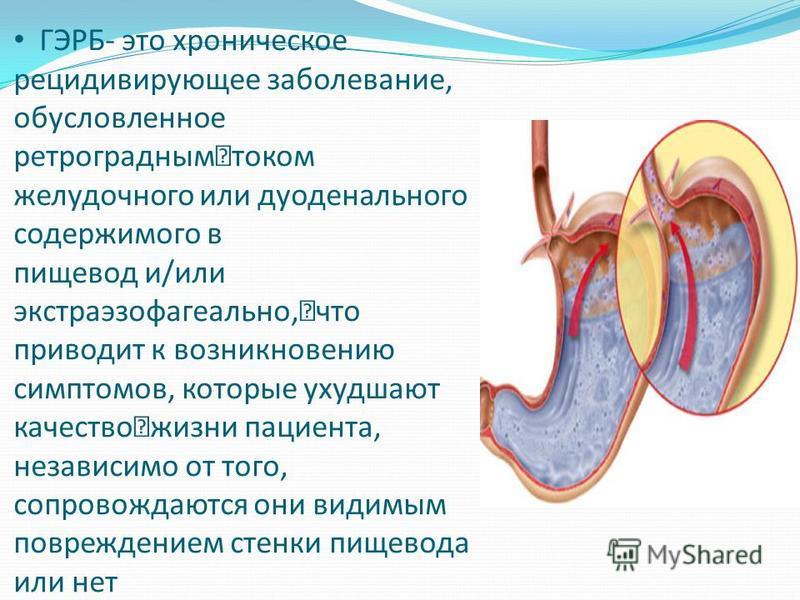 Гастроэзофагеальная рефлюксная болезнь желудка (гэрб): классификация, симптомы, лечение и питание при заболевании