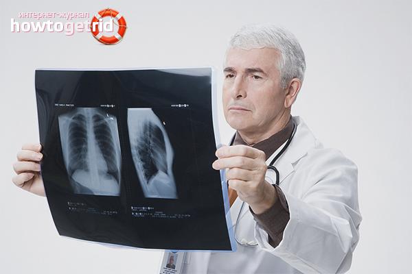 Как вылечить пневмонию дома или в стационаре, лекарства и народные средства