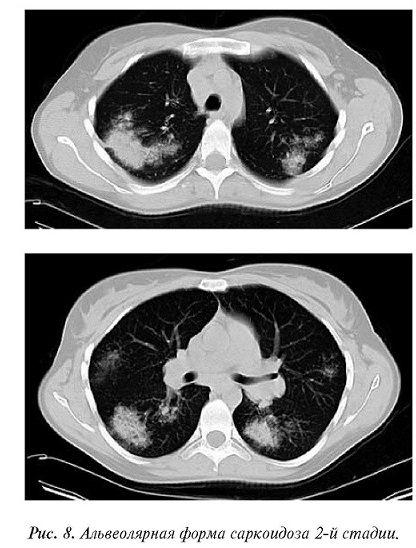 Очаги в лёгких на кт: классификация образований