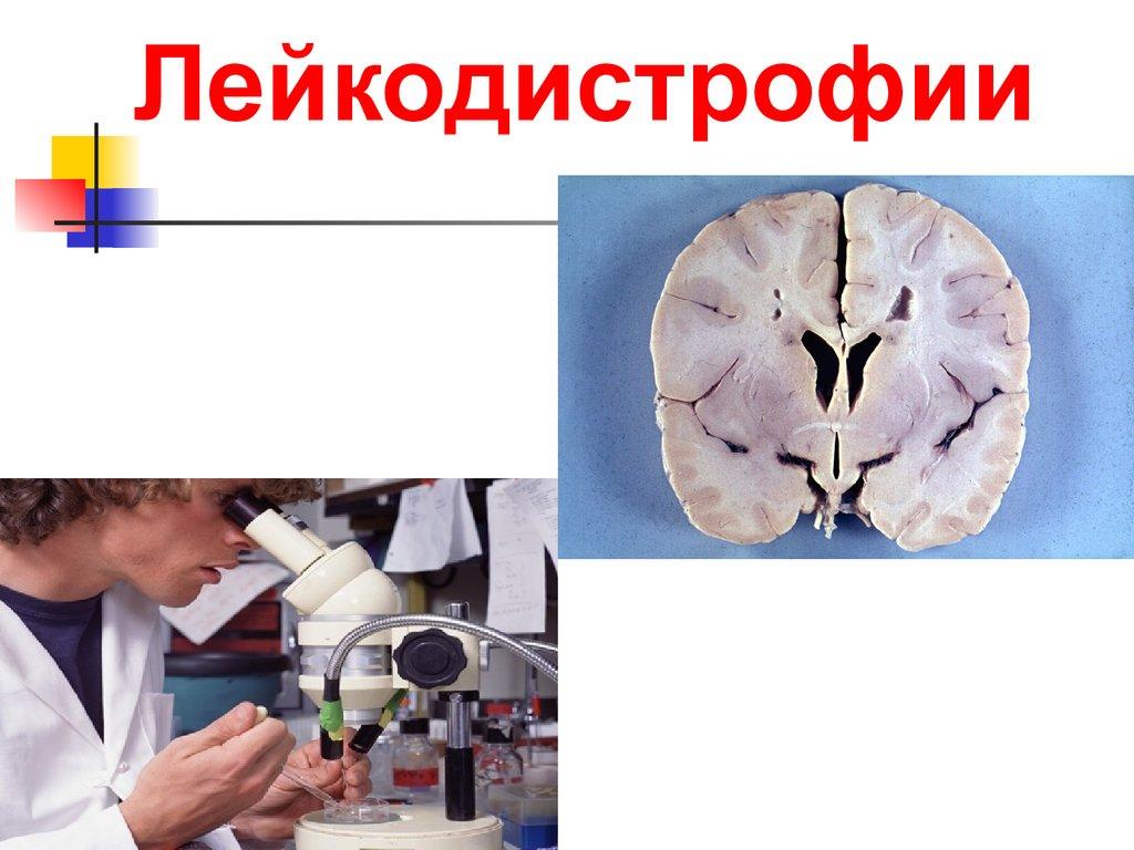 Адренолейкодистрофия - adrenoleukodystrophy - qwe.wiki