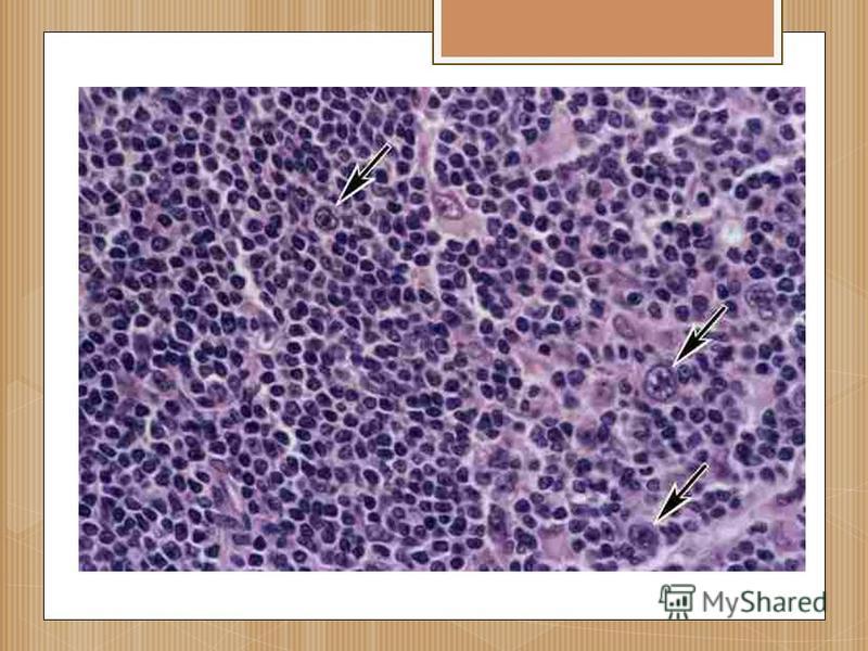 Лимфогранулематоз (болезнь ходжкина) – причины, симптомы, диагностика, лечение и прогноз.