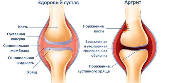 Симптомы и лечение при артрите голеностопного сустава