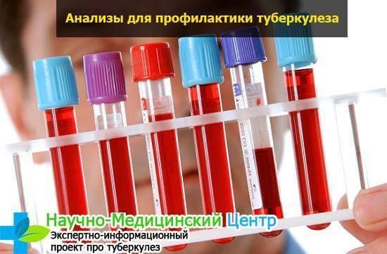 Общий анализ крови при туберкулезе лёгких