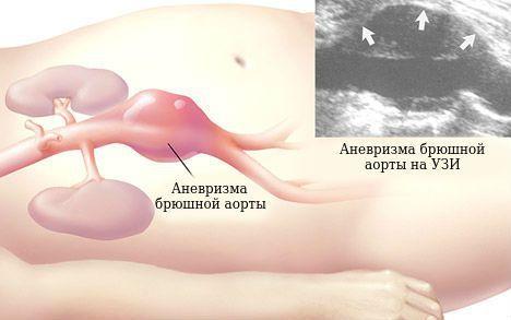 Аневризма аорты брюшной полости: симптомы, причины, лечение, виды аневризмы, операция