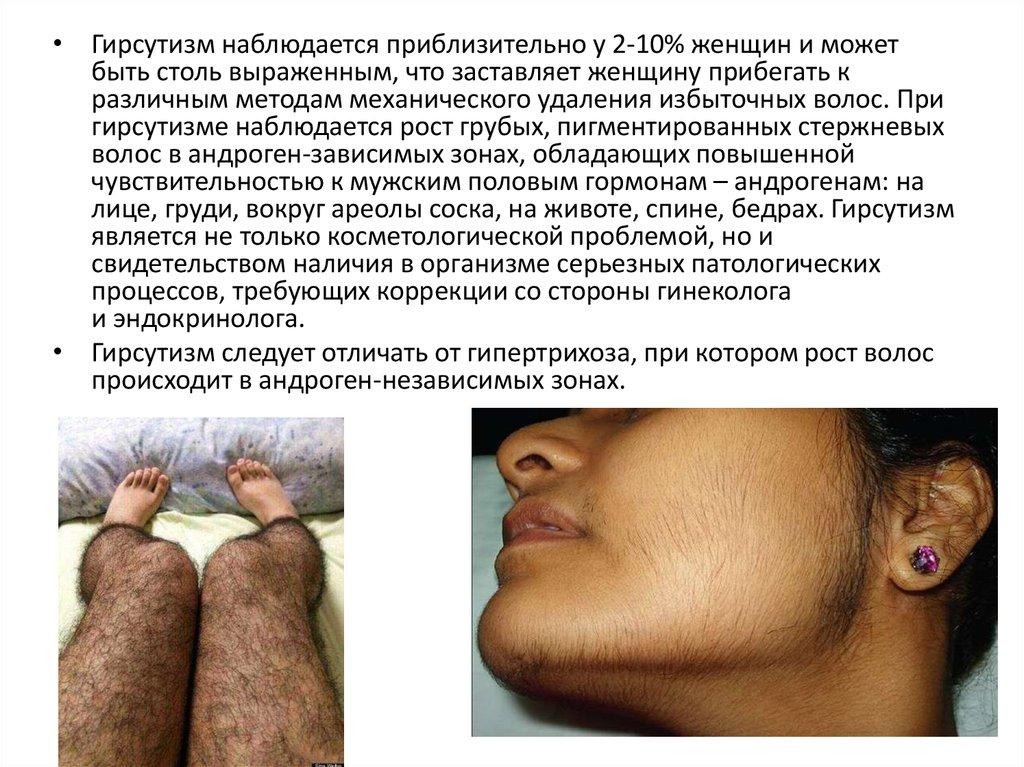 Гирсутизм: что это такое, причины, симптомы, лечение у женщин