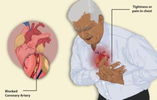 Болит сердце: как оказать помощь в домашних условиях?