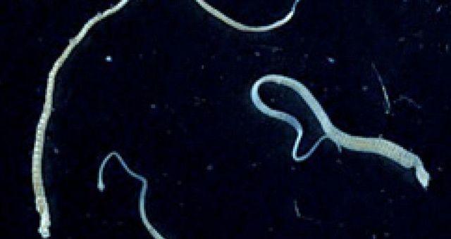 Анализ на гименолепидоз — parazit24