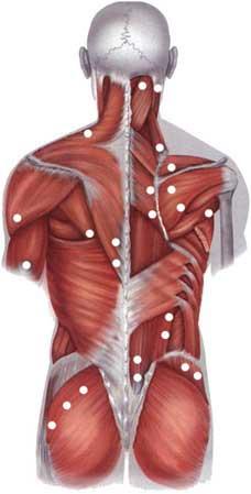 Остеохондроз: что делать, если болят шея и голова