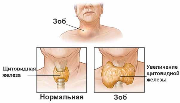 Лечение гипотиреоза препаратом эндонорм