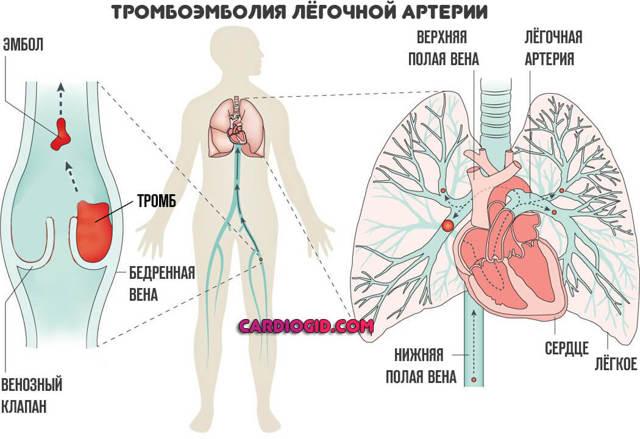 Тромбоз: причины, симптомы, лечение, профилактика