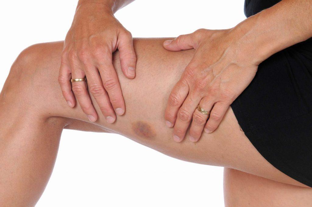 Гематома на ноге после ушиба: лечение в домашних условиях
