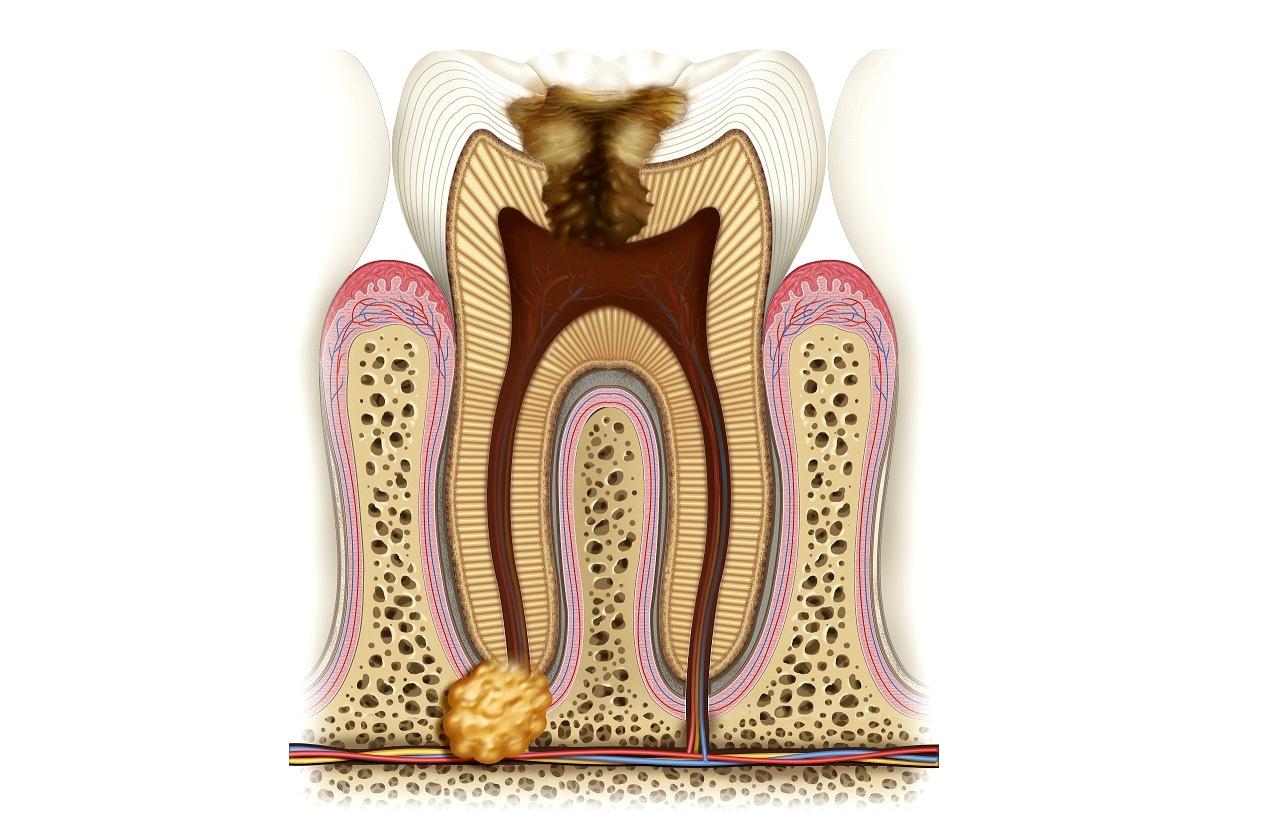Причины появления гранулемы зуба и тактика ее лечения