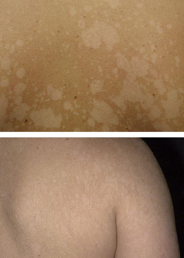 Псориаз: причины возникновения, симптомы и лечение чешуйчатого лишая