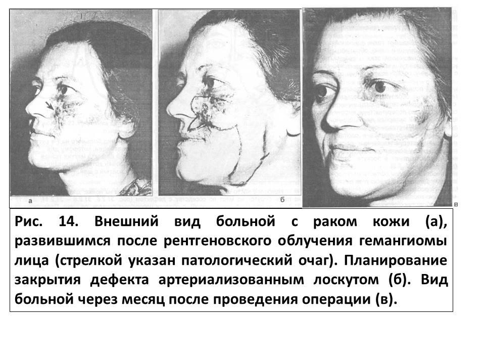 Неврит лицевого нерва (паралич белла)