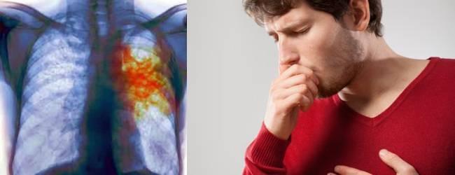 Мокрота с кровью при кашле, причины у взрослых